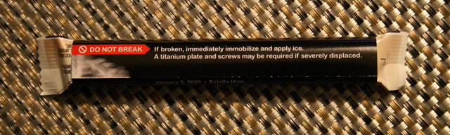 The back: it says - DO NOT BREAK. If broken, immediately immobilize and apply ice. A titanium plate and screws may be required if severely displaced.